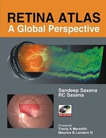 Retina Atlas: A Global Perspective: A Global Perspective