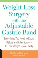 Weight Loss Surgery with the Adjustable Gastric Band: Everything You Need to Know Before and After Surgery to Lose Weight Successf