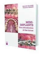 9782366150186 - Skander Ellouze: Mini-implants: The Orthodontics Of The Future - Livre