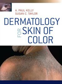 Book Dermatology for Skin of Color by A. Paul Kelly