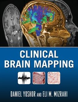 Book Clinical Brain Mapping by Daniel Yoshor