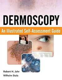 Dermoscopy: An Illustrated Self-Assessment Guide: An Illustrated Self-Assessment Guide