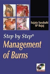 Book Step by Step Management of Burns by Sujata Sarabahi