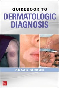 Book Guidebook to Dermatologic Diagnosis by Susan Burgin