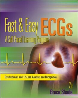 Book Fast and Easy ECGs: A Self-Paced Learning Program by Bruce Shade