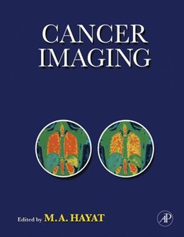Book Cancer Imaging: Lung and Breast Carcinomas by M. A. Hayat