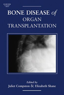 Book Bone Disease Of Organ Transplantation by Juliet Compston