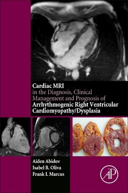 Book Cardiac Mri In Diagnosis, Clinical Management, And Prognosis Of Arrhythmogenic Right Ventricular… by Aiden Abidov