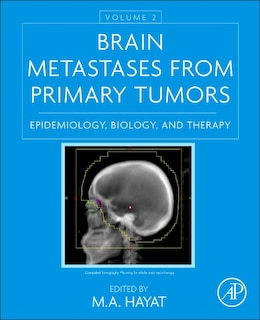 Book Brain Metastases From Primary Tumors, Volume 2: Epidemiology, Biology, And Therapy by M. A. Hayat