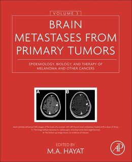 Book Brain Metastases From Primary Tumors, Volume 3: Epidemiology, Biology, And Therapy Of Melanoma And… by M. A. Hayat