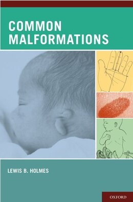 Book Common Malformations by Lewis B. Holmes