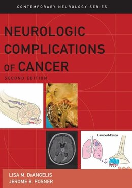 Book Neurologic Complications of Cancer by Lisa M. DeAngelis