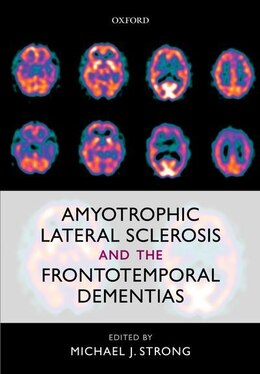 Book Amyotrophic Lateral Sclerosis and the Frontotemporal Dementias by Michael J. Strong