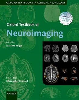 Book Oxford Textbook of Neuroimaging by Massimo Filippi