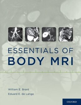 Book Essentials of Body MRI by William E. Brant