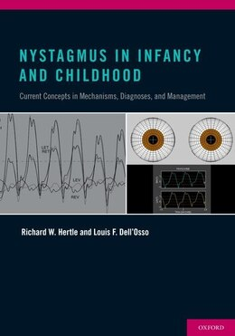 Book Nystagmus In Infancy and Childhood: Current Concepts in Mechanisms, Diagnoses, and Management by Richard W. Hertle