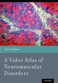 Book A Video Atlas of Neuromuscular Disorders by Aziz Shaibani