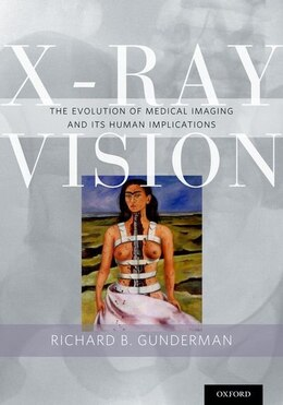 Book X-Ray Vision: The Evolution of Medical Imaging and Its Human Implications by Richard B. Gunderman