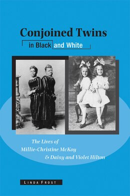 Book Conjoined Twins in Black and White: The Lives of Millie-Christine McKoy and Daisy and Violet Hilton by Linda Frost