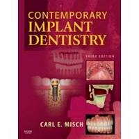Book Contemporary Implant Dentistry by Carl E. Misch