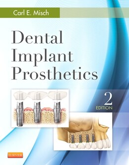 Book Dental Implant Prosthetics by Carl E. Misch