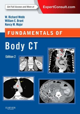 Book Fundamentals Of Body Ct: Expert Consult - Online And Print by W. Richard Webb