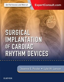 Book Surgical Implantation Of Cardiac Rhythm Devices by Jeanne Poole