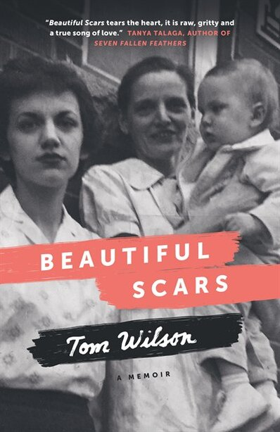 Beautiful Scars Steeltown Secrets Mohawk Skywalkers And The Road Home Book By Tom Wilson Paperback Www Chapters Indigo Ca
