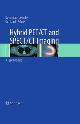 Book Hybrid PET/CT and SPECT/CT Imaging: A Teaching File by Dominique Delbeke