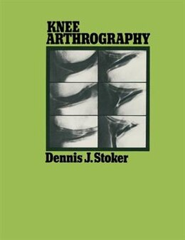 Book Knee Arthrography by Dennis J. Stoker