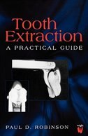 Tooth Extraction: a practical guide