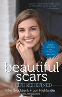 Beautiful Scars: A Life Redefined