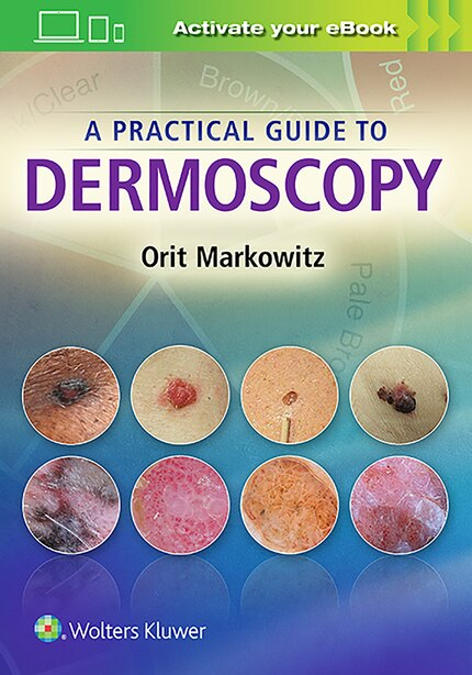 A Practical Guide To Dermoscopy by Orit Markowitz