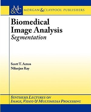 Biomedical Image Analysis: Segmentation by Scott T. Acton