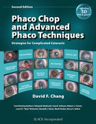 Phaco Chop And Advanced Phaco Techniques: Strategies For Complicated Cataracts