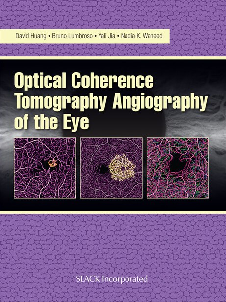 Optical Coherence Tomography Angiography Of The Eye: Oct Angiography by David Huang