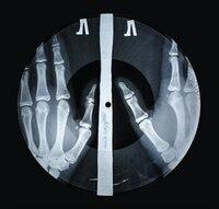 X-ray Audio: The Strange Story Of Soviet Music On The Bone