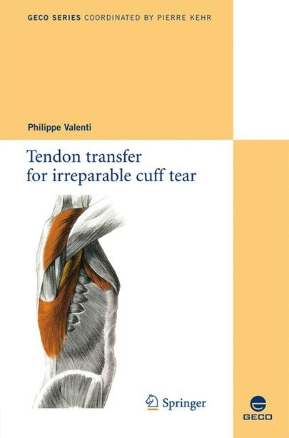 Tendon transfer for irreparable cuff tear by Philippe Valenti
