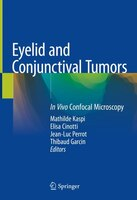 Eyelid And Conjunctival Tumors: In Vivo Confocal Microscopy