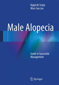 Male Alopecia: Guide to Successful Management