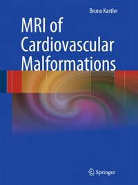 MRI of Cardiovascular Malformations
