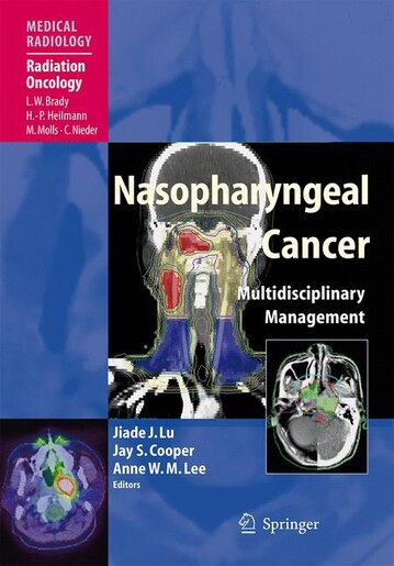 Nasopharyngeal Cancer: Multidisciplinary Management by Jiade J. Lu
